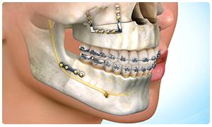 cirugia-maxilo-facial-estheticplus
