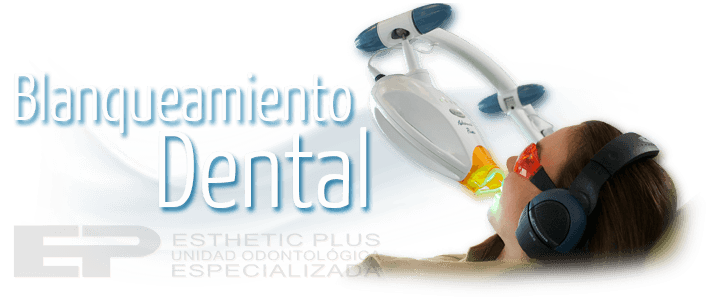 Blanqueamiento dental en Pasto - Ipiales - Esthetic Plus